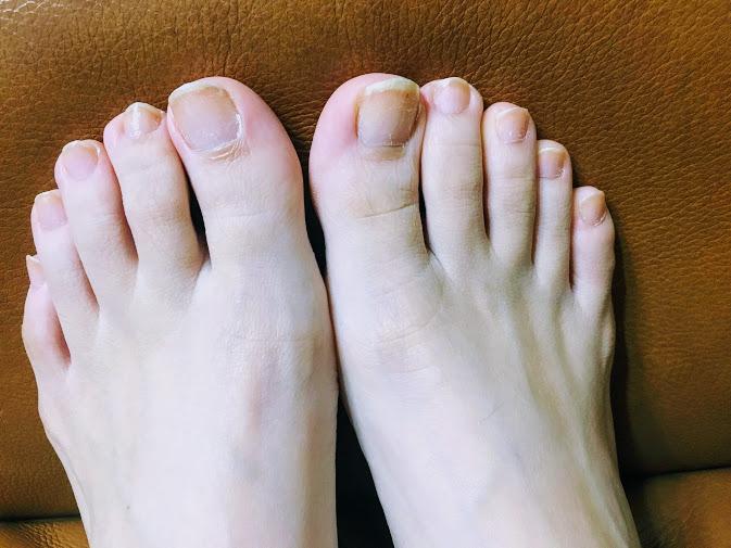 足指上向き困った